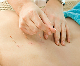 WORKSHOP | Alchemy of Acupuncture